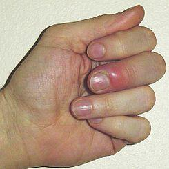 Mano de la uñas por las que duelen