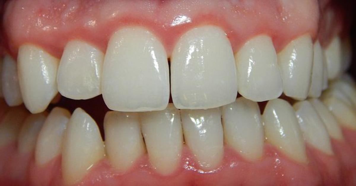 la periodontitis se contagia