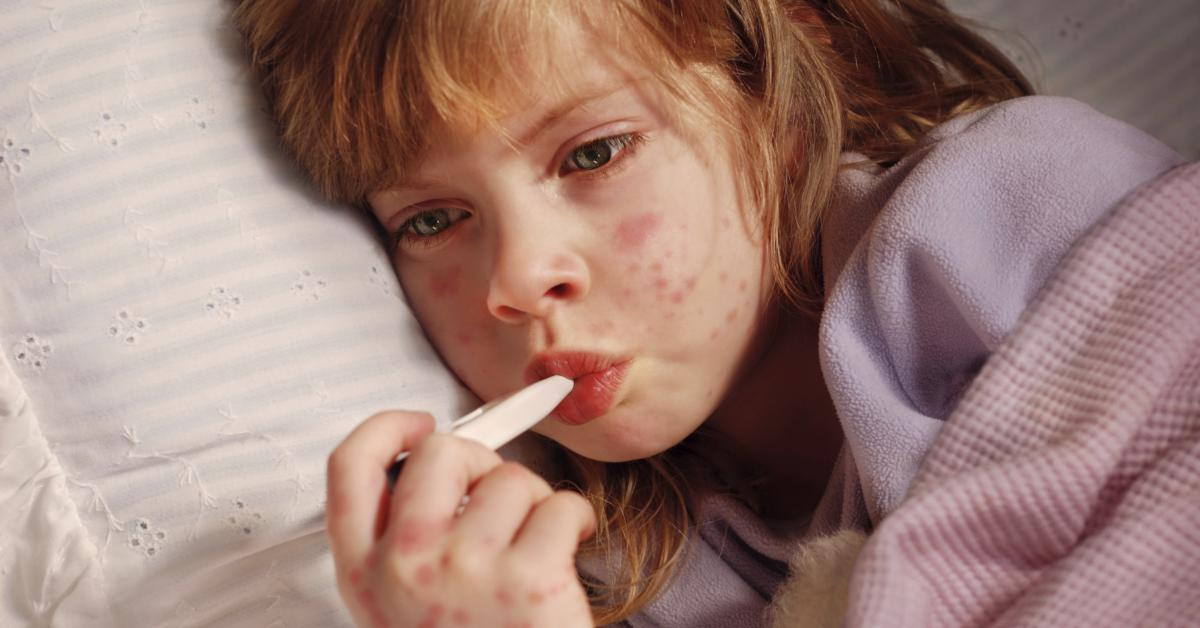 infecciones virales de la piel en niños