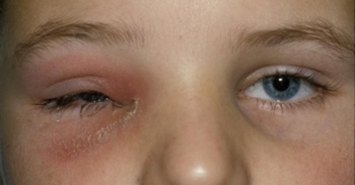 mal de ojo en niños sintomas de diabetes